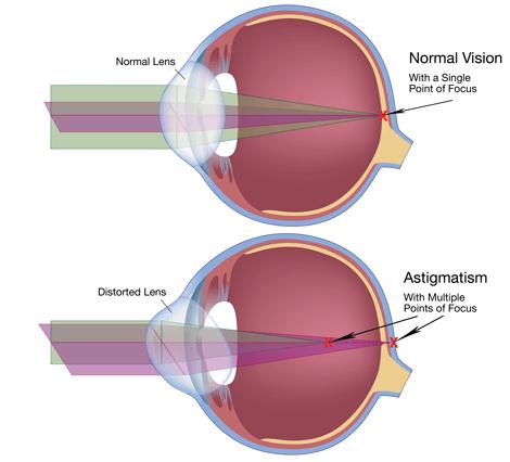 cure-astigmatism-naturally