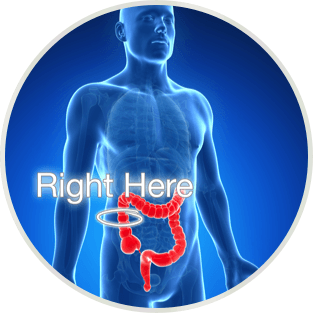 Colon & Natural Vision Correction