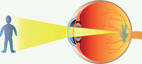Eyesight Correction & Your Mind