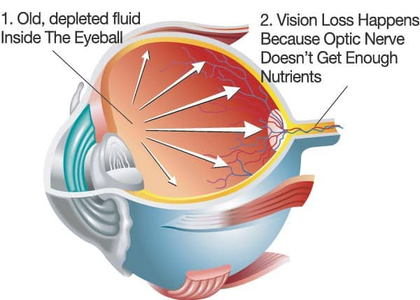 What Truly Causes Glaucoma