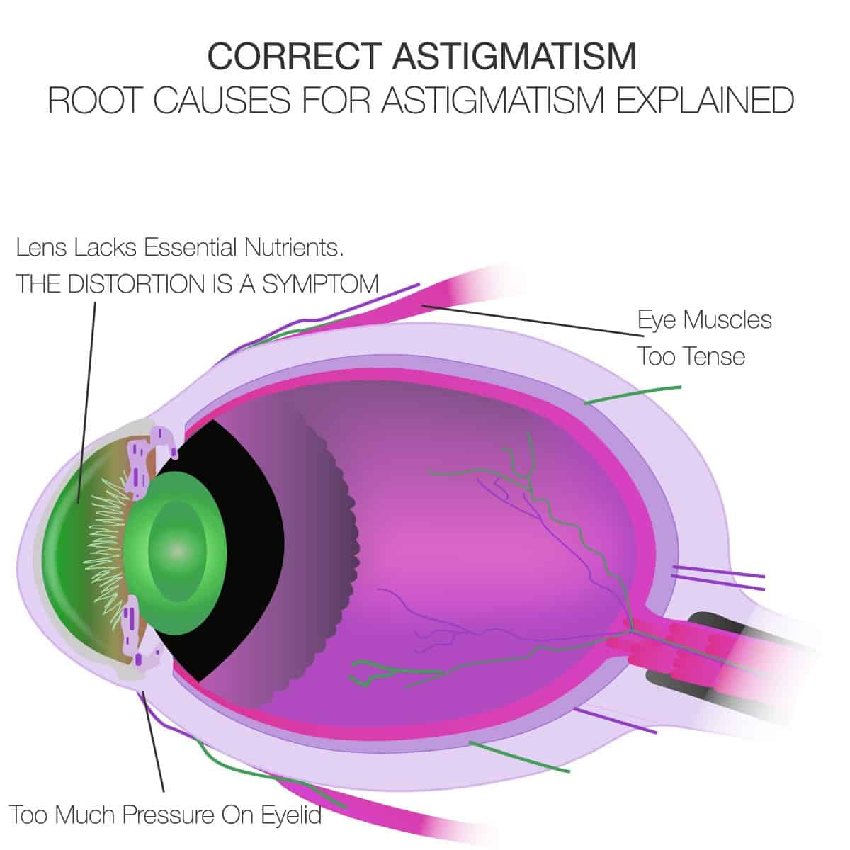 Correct Astigmatism