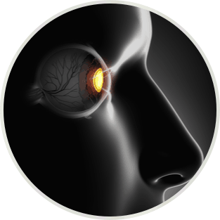 cure-myopia-3